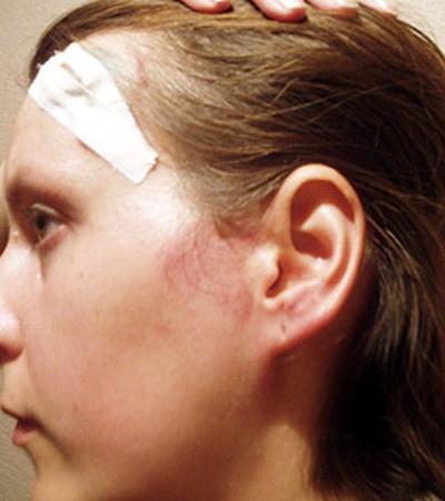 Ирина приехала в Харьков с рваной раной головы.