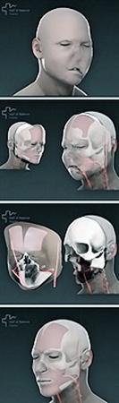 Оскару заменли практически все лицо, включая челюсть с зубами.