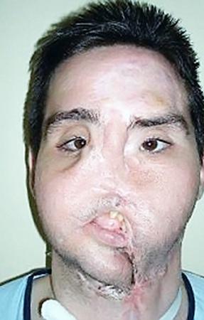 Фермер до операции: не мог дышать, есть и говорить. Нос отсутствовал полностью.