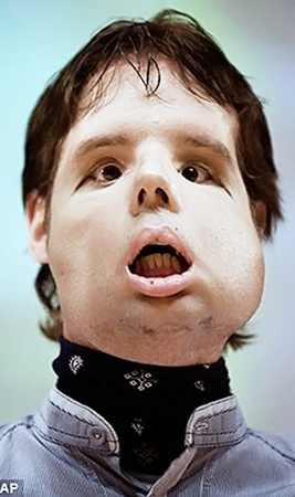 Оскар после операции.