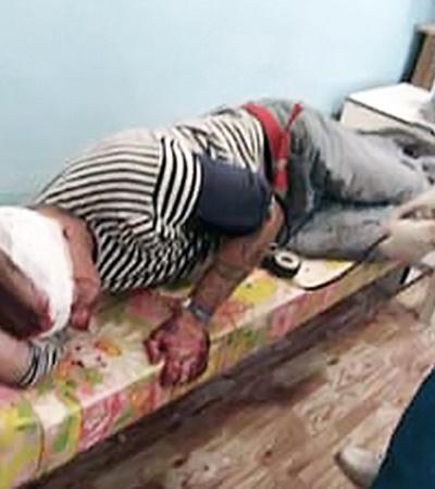 С переломами и ранениями в больницу попали 19 человек.