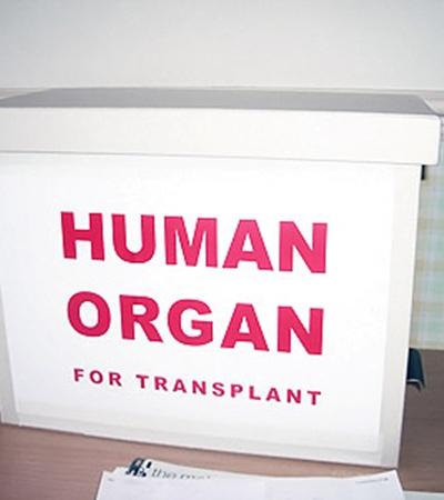 В таких контейнерах хранят искусственные органы.