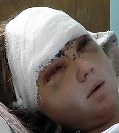 Врачам удалось спасти жизнь Ани. Но ей еще долго придется лечиться.