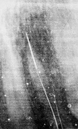 Рентген показал: в одном из зубов находилась часть сломанной иглы.