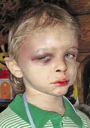 Так Глеб выглядел в феврале 2009 года: по словам Агеевых, малыш упал с собачьей будки...