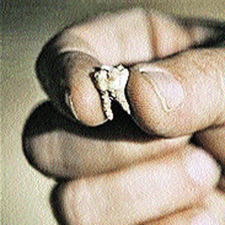 Зуб, который позволил состарить человеческий род.