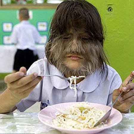 - Я надеюсь, что когда-нибудь избавлюсь от волос, - говорит Супатра. Фото DailyMail.