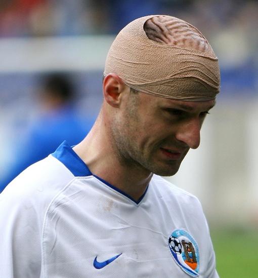 Игор Дуляй продолжал отчаянно играть даже с повязкой на голове. Фото Павла ДАЦКОВСКОГО.