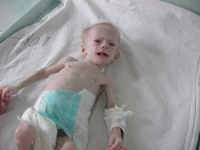 Малышу три месяца, а весит он всего три килограмма. Фото: vp.donetsk.ua.