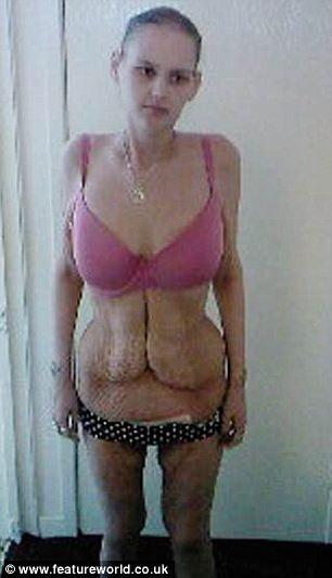 Мелисса Джонс четыре года назад похудевшая на 165 килограмм. Фото с сайта featureworld.co.uk.