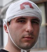 23-летний «свободовец» Владимир Василенко получил сотрясение мозга.