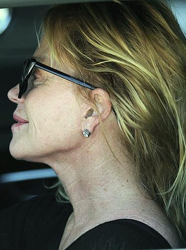 На неважный внешний вид актрисы повлияли и многочисленные пластические операции, которые она сделала в прошлом. Фото All Over Press.