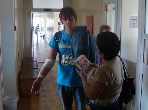 Дмитрий сидел у окна в злосчастном автобусе. Во время аварии он сильно повредил руку.