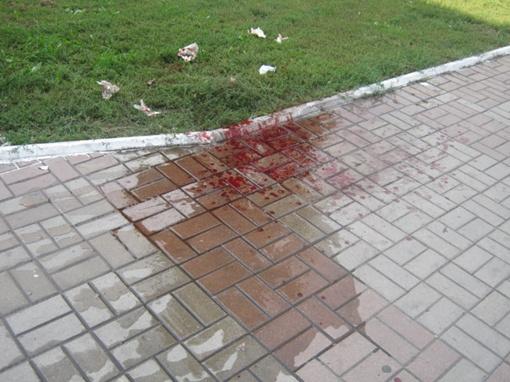 У магазина осталась лужа крови. Фото: 0629.