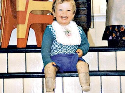 Малыш Оскар учился ходить сразу на протезах, с которыми в итоге сроднился.
