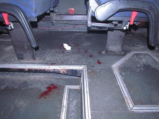 Пассажиры получили травмы