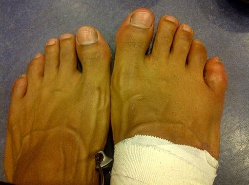 ...мизинец на правой ноге. Фото Рейтер и с личной страницы Дэвида в Фейсбуке.