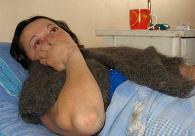 У пострадавшей – многочисленные ушибы и сильнейшее нервное потрясение. Фото: donbass.ua