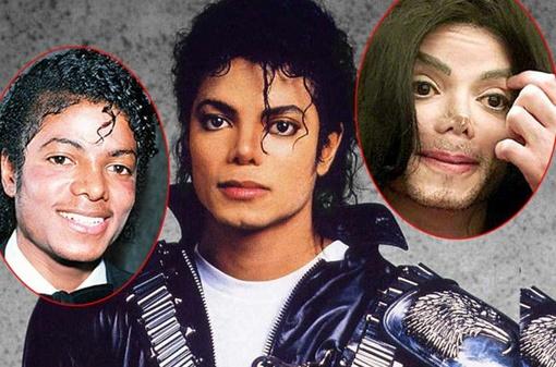 Так менялась внешность Майкла Джексона с начала его карьеры. Фото с сайта kp.ru