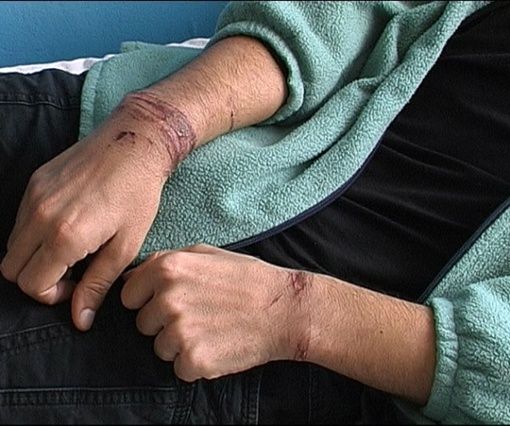 На коже у похищенного следы веревок. Фото ЦОС ГУ МВД в Полтавской области