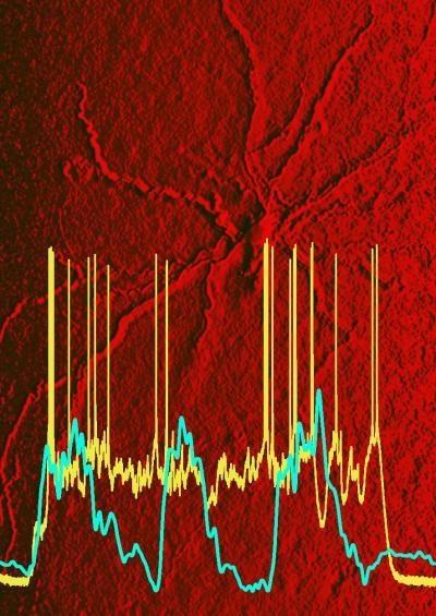 Снимок сканирования, сделанный профессором нейрофизики Маянком Р. Мета