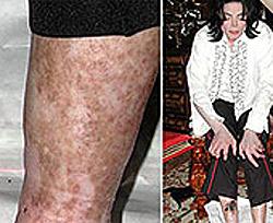 Джексон повторял пилинг каждые восемь недель...его кожа этого не выдерживала.