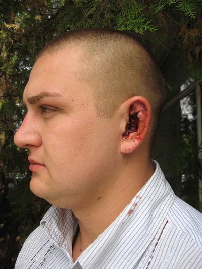Руслан Куксенко утверждает, что возле него разорвалась граната. Фото автора.
