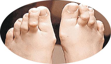 Ноги «жертвы шпилек»: такими картинками медики пугают модниц.
