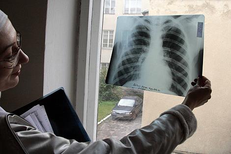 90% легких умершего были поражены неизвестным вирусом.