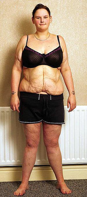 Так Мелисса выглядит спустя два года после операции. Теперь она весит 76 кг.