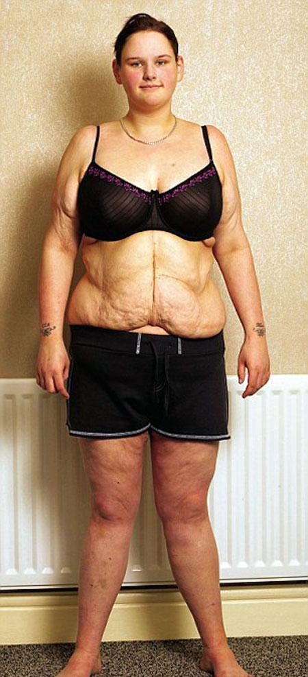 Спустя два года после операции. Ее нынешний вес 76 кг.