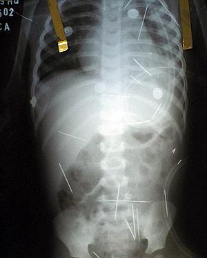 Некоторые иголки не получилось извлечь сразу - они находятся в жизненно важных органах.