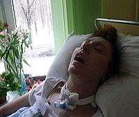 За год в коме Анна похудела на 22 килограмма - с 62 до 40. Фото: предоставлено «КП» Кириллом СПИЦЫНЫМ.