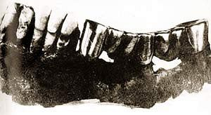 Снимок челюсти Гитлера.