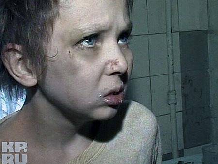 За год Женя превратился из ребенка в дикаря. Фото: Предоставлено телестанцией