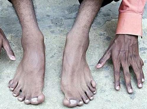 А на ногах у Харамба еще больше пальцев