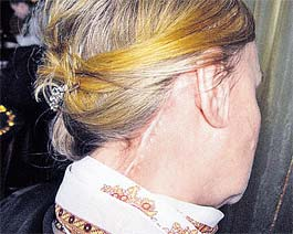 У Галины после подтяжки лица остались такие вот шрамы...