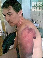 В милиции дмитрия били палками, ножкой от стола, пытали током.