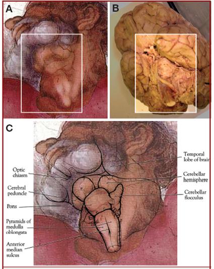 На шее Бога ученые увидели рисунок отделов человеческого мозга