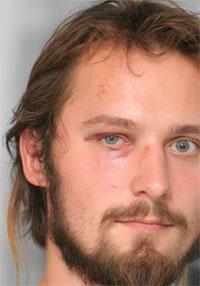 По словам Дмитрия Куприяна, его ударили в лицо не менее трех раз.