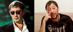 Григорий Лепс сильно изменился за время болезни (справа), но скоро вернется в привычный образ (слева).