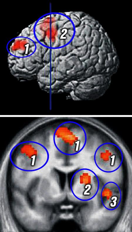 Кружочками обведены зоны мозга, в которых вспыхивает ненависть. В них же «живет» и любовь. 1. Лобная кора. 2. Скорлупа. 3. Островок.